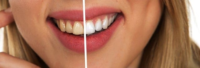 How to Remove Coffee Stains from Teeth?